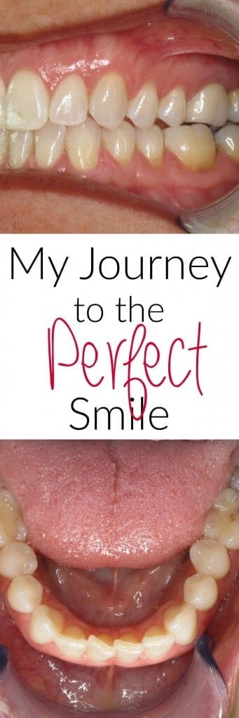 My journey to the perfect smile