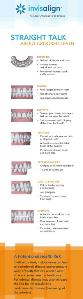 Crooked teeth can be dangerous to your health serving a potential health risk! Invisalign can hel.