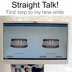 Invisalign – First Step To My New Smile