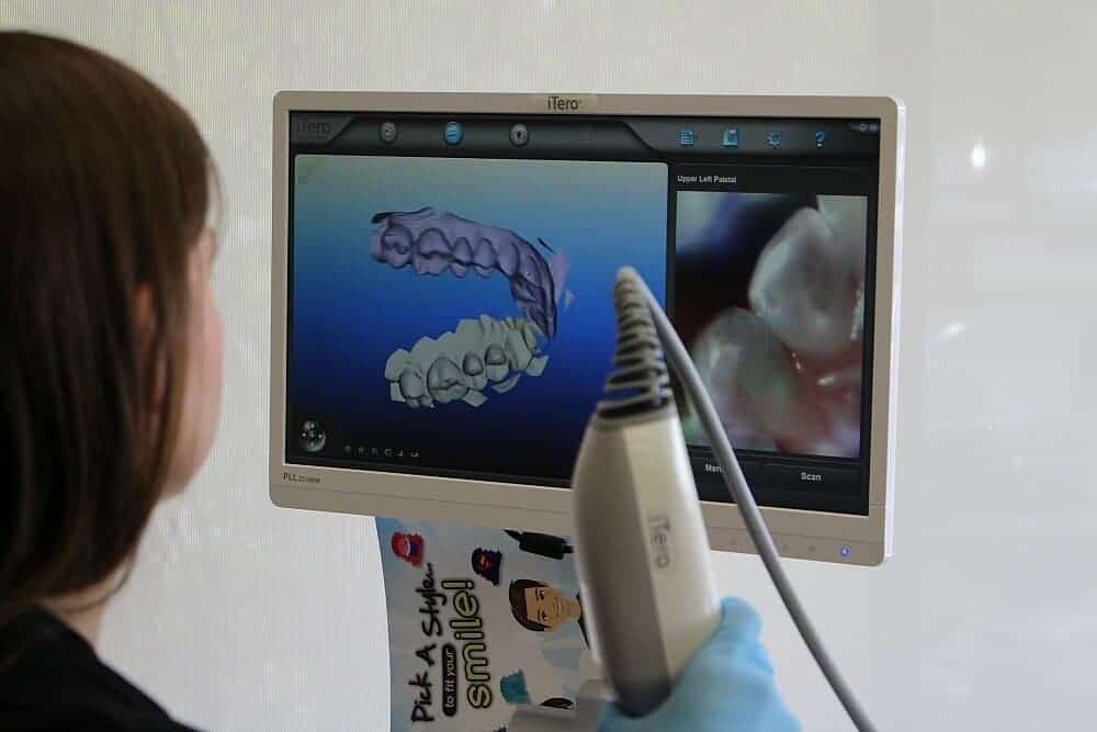 invisalign screen of teeth